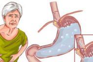 Gripa la stomac: cum se manifestă