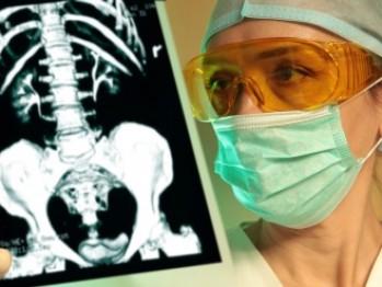 Urografia intravenoasă examinează starea rinichilor