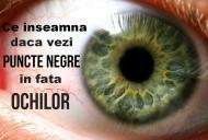 Ce inseamna cand vezi puncte negre in fata ochilor