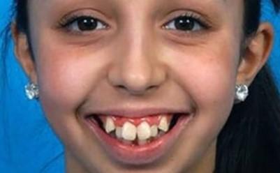 Toata lumea radea de dintii ei strambi. Dar acum, dupa operație, fata s-a transformat total!