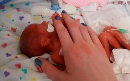 Fetita nascuta cu o zi inainte de limita avortului. Cum arata acum