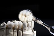 Restaurare dentara completa prin Coroane de zirconiu