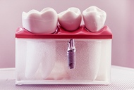 Ce trebuie sa stii despre Implantul Dentar