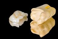 Increstatii ceramice din foita de aur, compozit sau ceramica