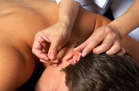 Auriculoterapie (acupunctura in ureche)