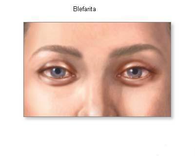 Blefarita