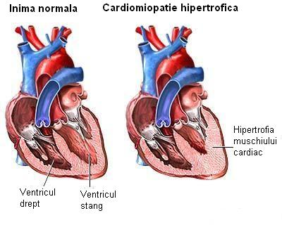 Cardiomiopatia hipertrofica
