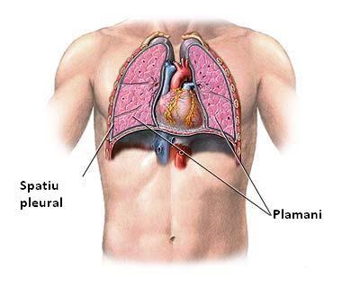 Poze medicale pansament plaga operatorie hernie inghinala