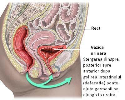 Cistite hepatica