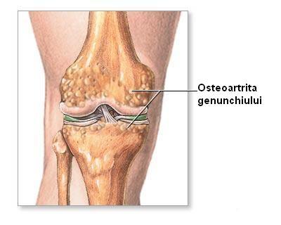 Gonartroza - osteoartrita genunchiului ⋆ Sanacas
