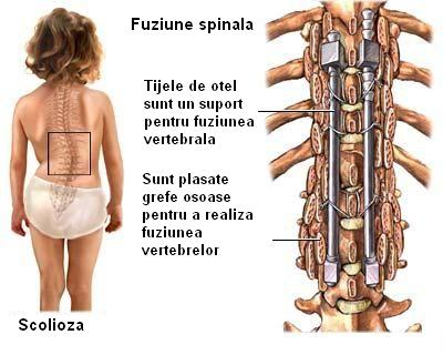Coloanei vertebrale in nuci-zuevo