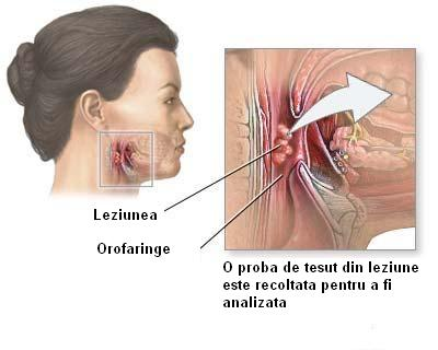 Efectele secundare al biopsiei de prostata sunt frecvente | prostatita.adonisfarm.ro