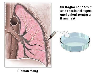 Biopsie transrectală a prostatei ghidată prin ultrasunete - prostatita.adonisfarm.ro