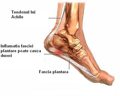 inflamația tratamentului gleznei piciorului)
