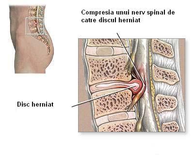 hernie disc cervicala