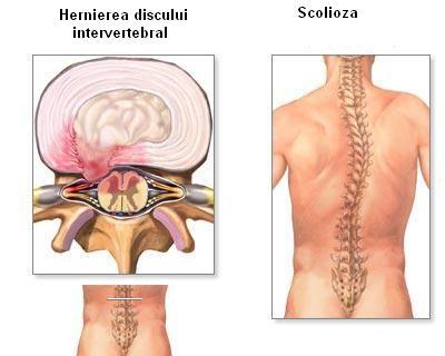 Hernia de disc – cauze, simptome, diagnostic, tratament – Smart Medical