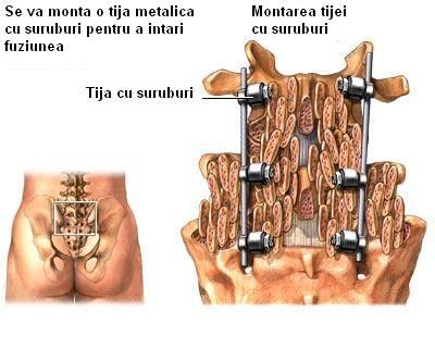 Cum tratam hernia de disc fara operatie?