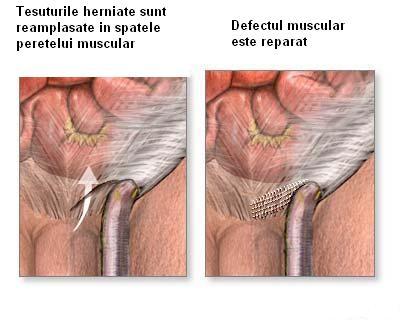 tratamentul spitalicesc al osteoartritei genunchiului