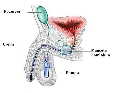 incontinenta urinara barbati