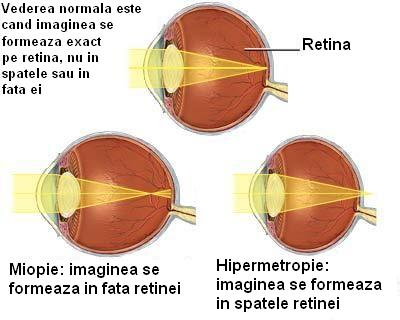 tulburări de vedere 3-4