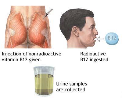 Anemia prin deficit de vitamina B12
