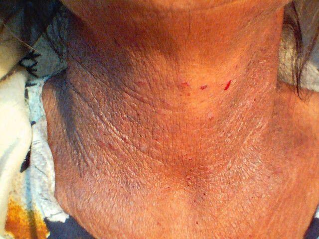 dermatita periorala rozacee poze