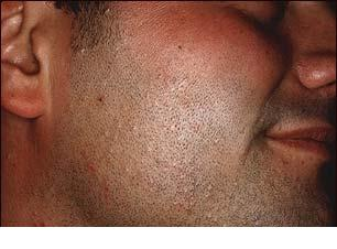 Infectia cutanata cu Molluscum Contagiosum