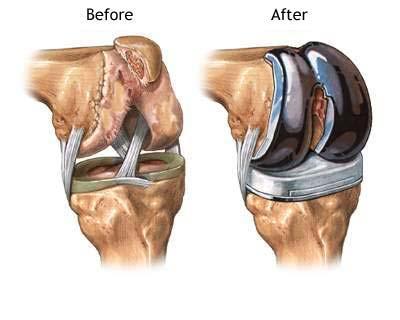 Patologia sportiva la nivelul genunchiului