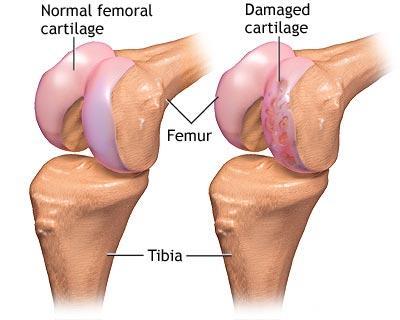 Recuperarea genunchiului după operația de menisc