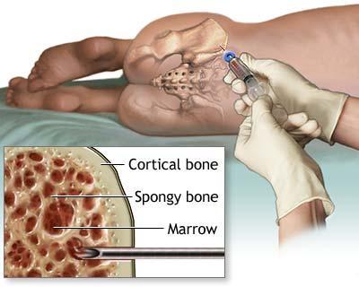 Sfaturi dupa punctie la prostata