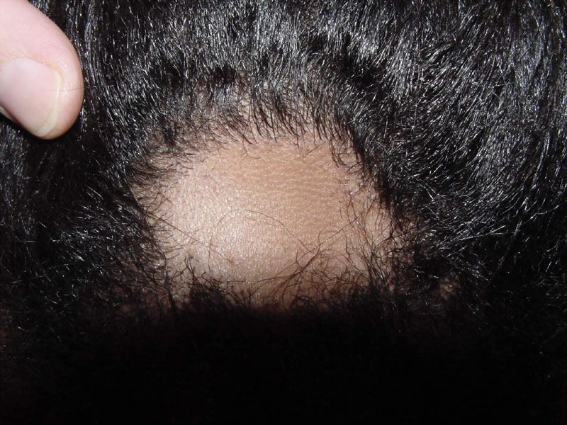 Treatment Alopecia Areata on Alopecia Areata Treatment Image Search Results