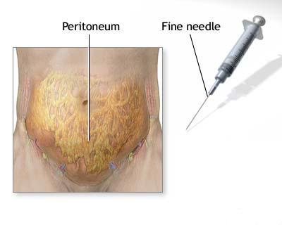 Studiu: Infecţiile cu HPV şi Gel Papillor În România de col uterin pot fi prevenite cu vaccinul anti-HPV