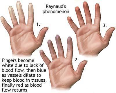 Sindromul durerii articulare a lui Raynaud)