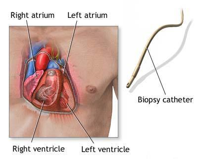 Cardiomiopatia restrictiva