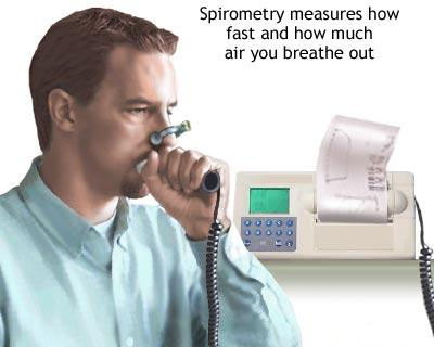 Astmul bronsic este agravat de fumat