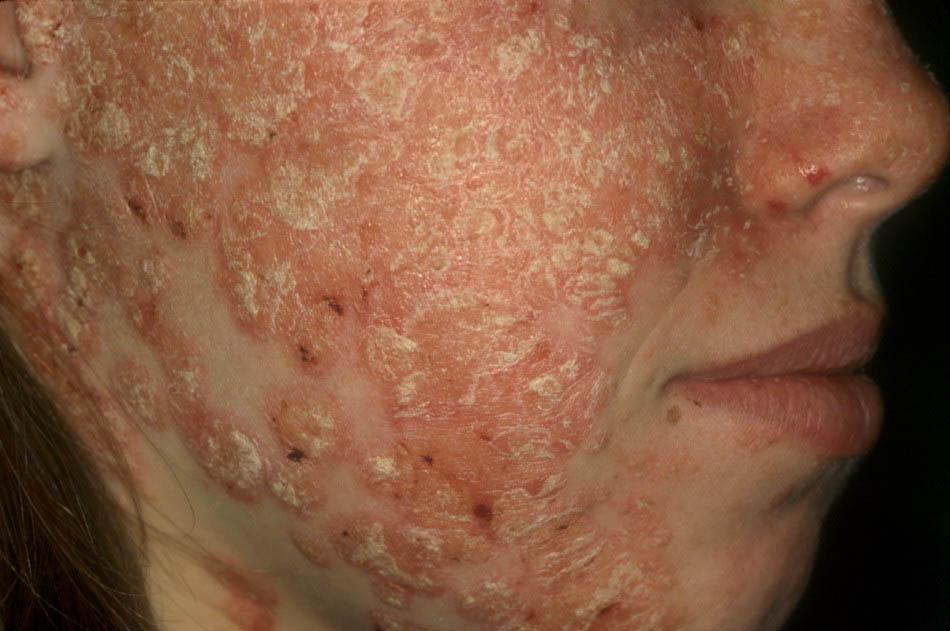 sampon pt dermatita atopica copii