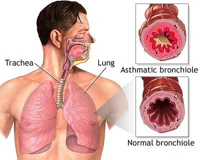 Exacerbarile astmului