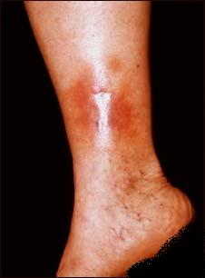 boala vasculară periferică ulcer venos