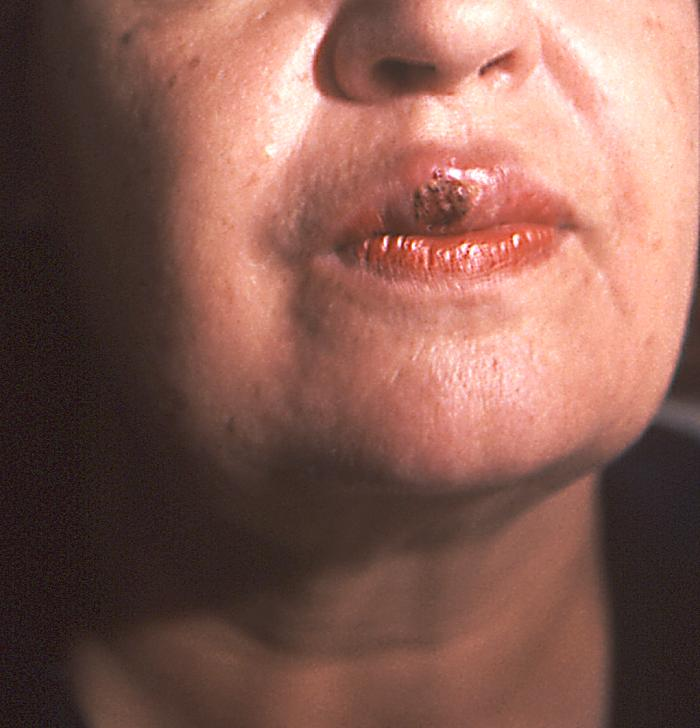 Sifilis primar