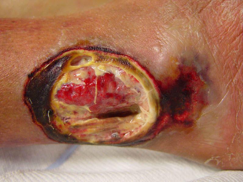 Pyoderma gangrenosum