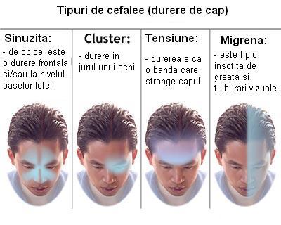 Tipuri de durere de cap