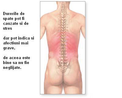 Durerea de spate