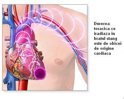 Duerea toracica de origine cardiaca