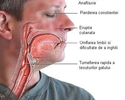 Simptome prostata poze