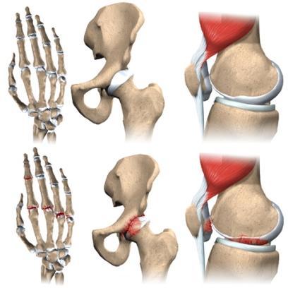 Osteoartrita medic