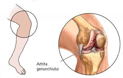 Frigul temperaturi mai mici dureri de spate diaree