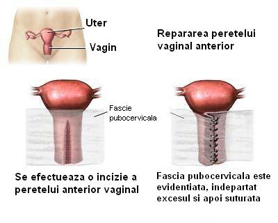 abstinenta sexuala beneficii