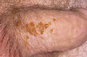 Папилломавирус человека у мужчин фото.