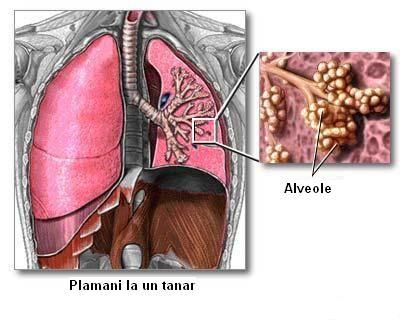 Leziuni artrita beneficii tratament ?i revizuiri rau