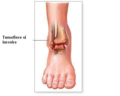 semne de artroză a gleznei)